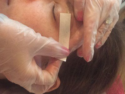 A picture of a person having eyebrow hair removed using wax